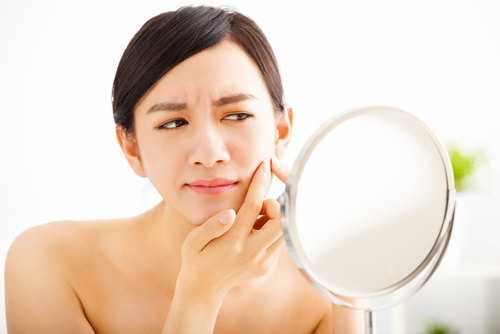 ADULT ACNE FAQ WITH NEU AGE CLINIC