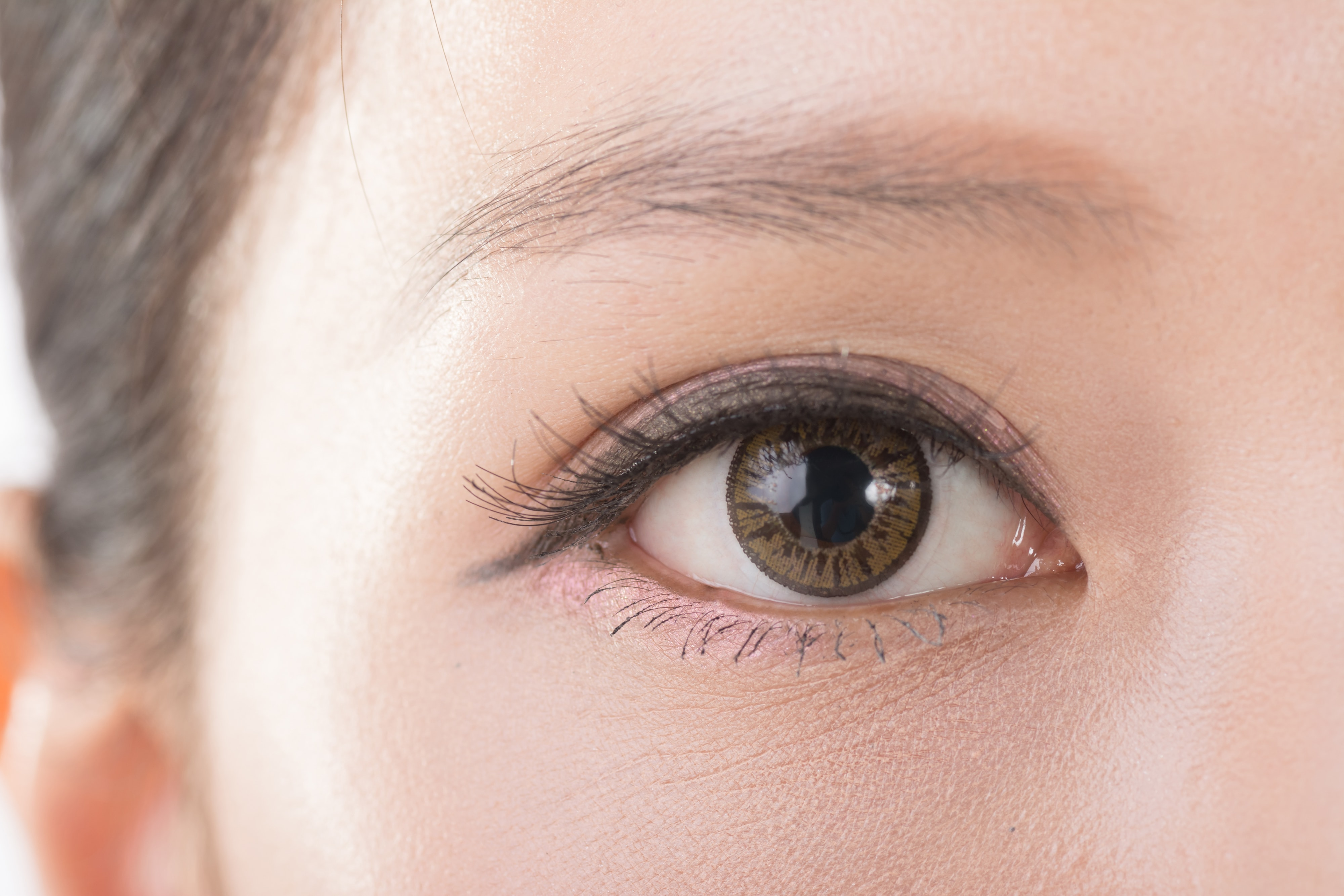 Double Eyelid Surgery