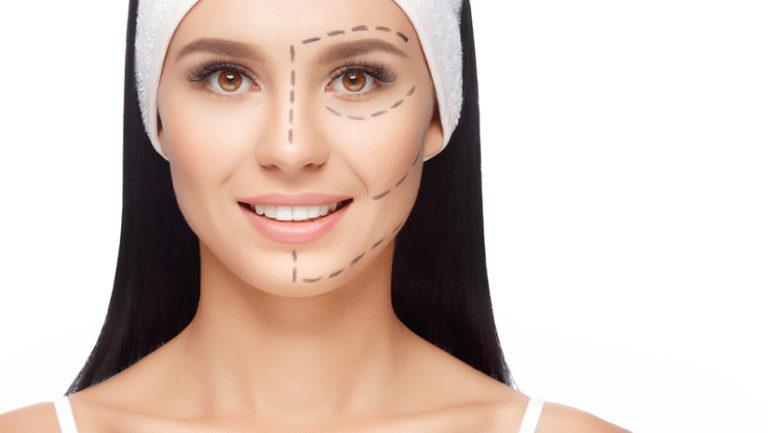 Facelift Procedure