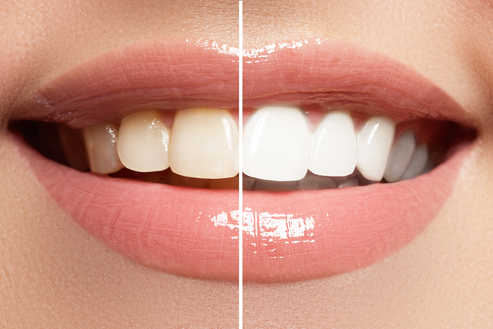 Teeth Whitening- How to Get Pearly Whites without Emptying Your Wallet