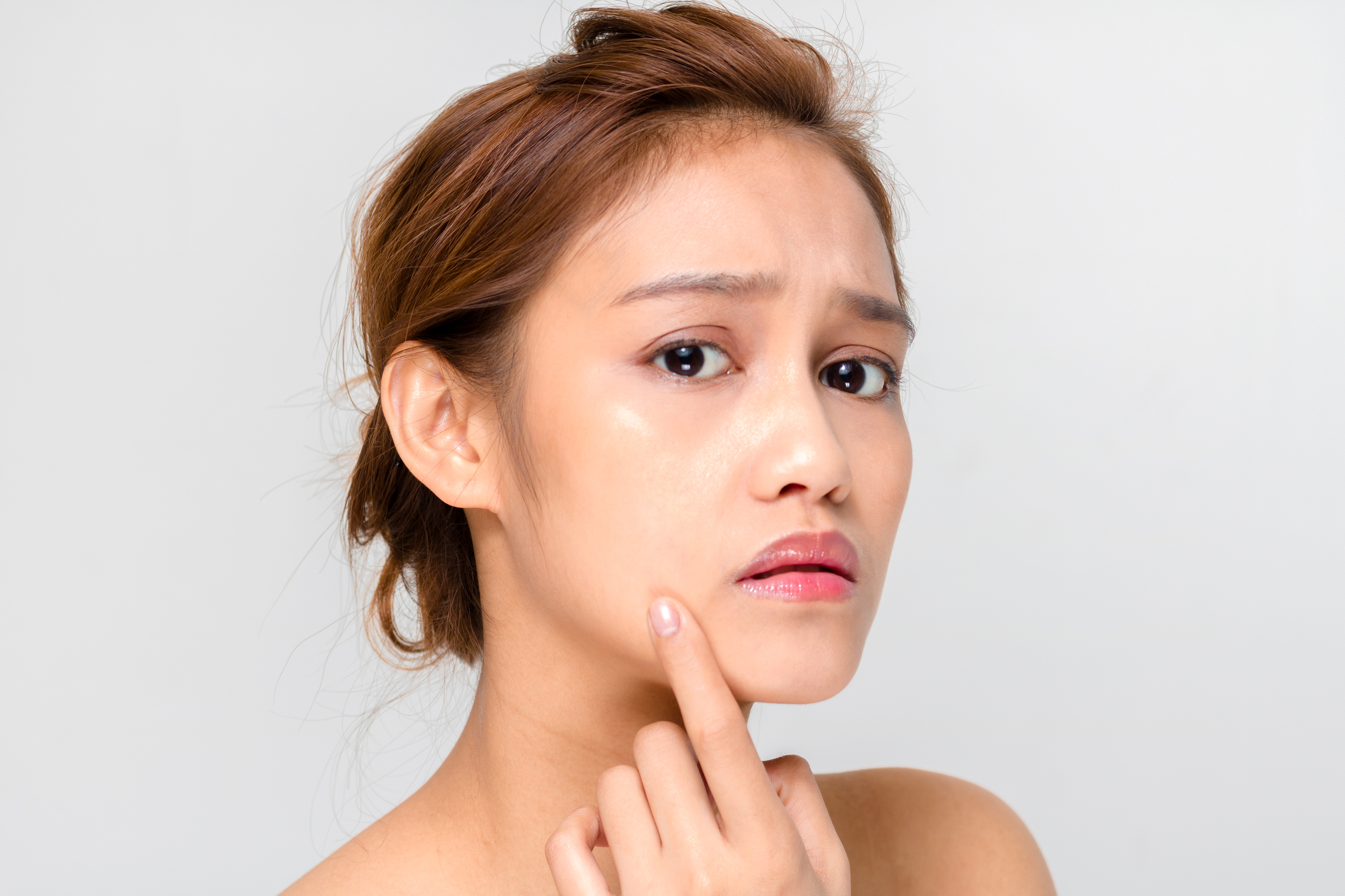 How to get rid of acne: 7 ways that every teenager should know