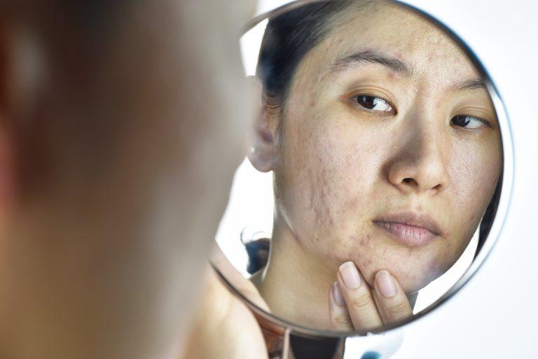 Acne Scar Treatment, best scar treatment, acne scars