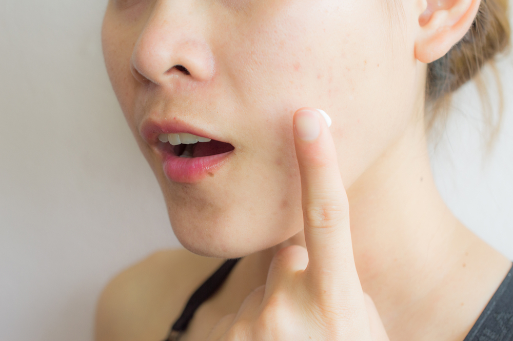 skin care treatments for acne