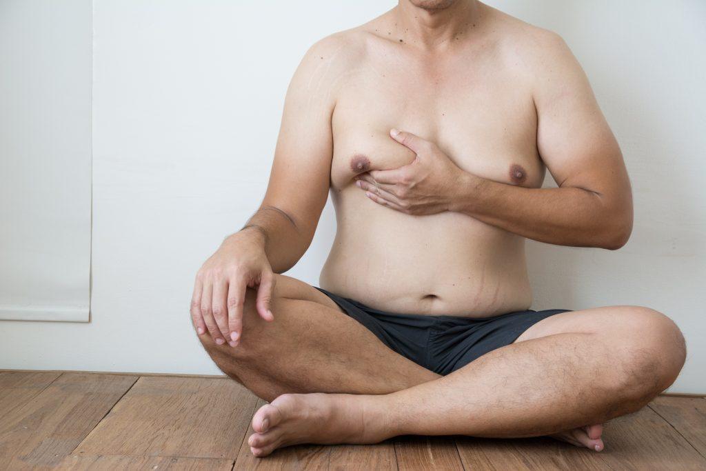 Gynecomastia Treatment