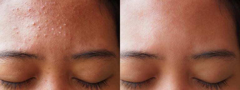 Acne Facial Singapore
