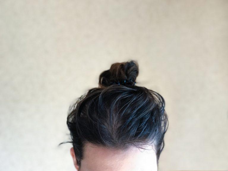 oily hair and scalp