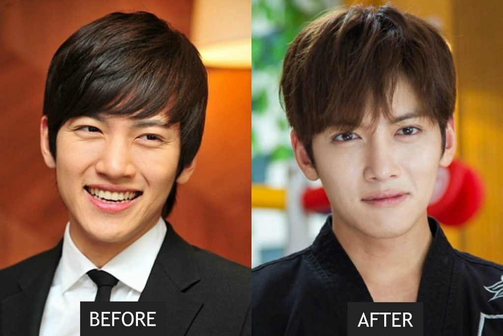 nose job Ji Chang Wook
