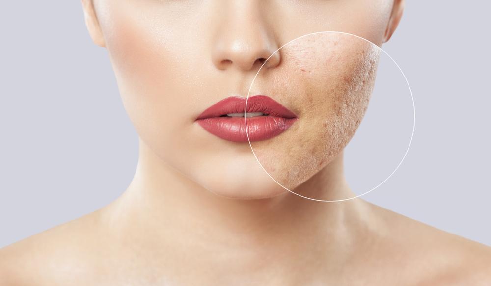 acne treatments singapore