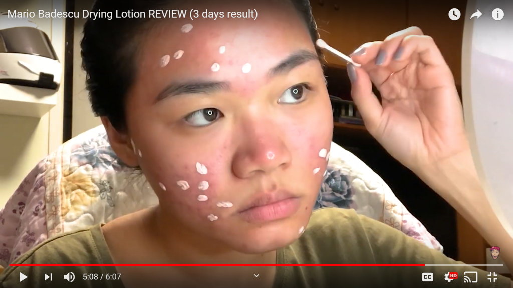 Forehead Acne Practical Tips From A Dermatologist