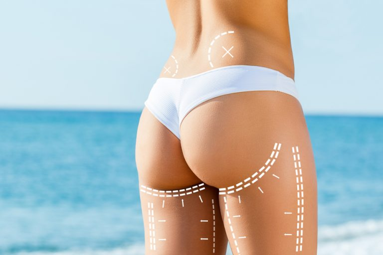 vaser liposuction singapore