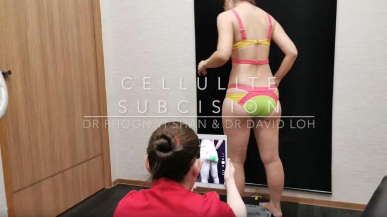 david-loh-cellulit-subcision
