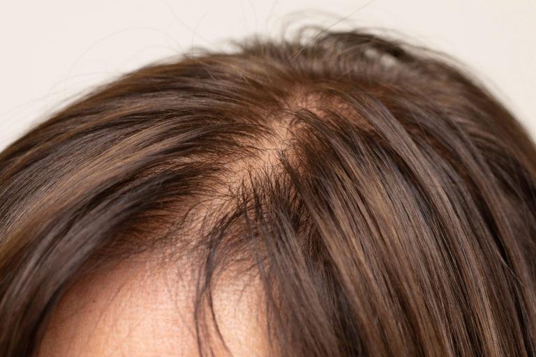 PHS hair Loss