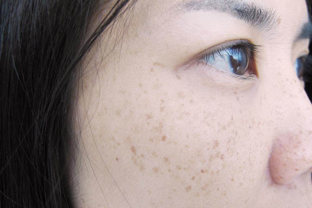 freckles removal singapore tips