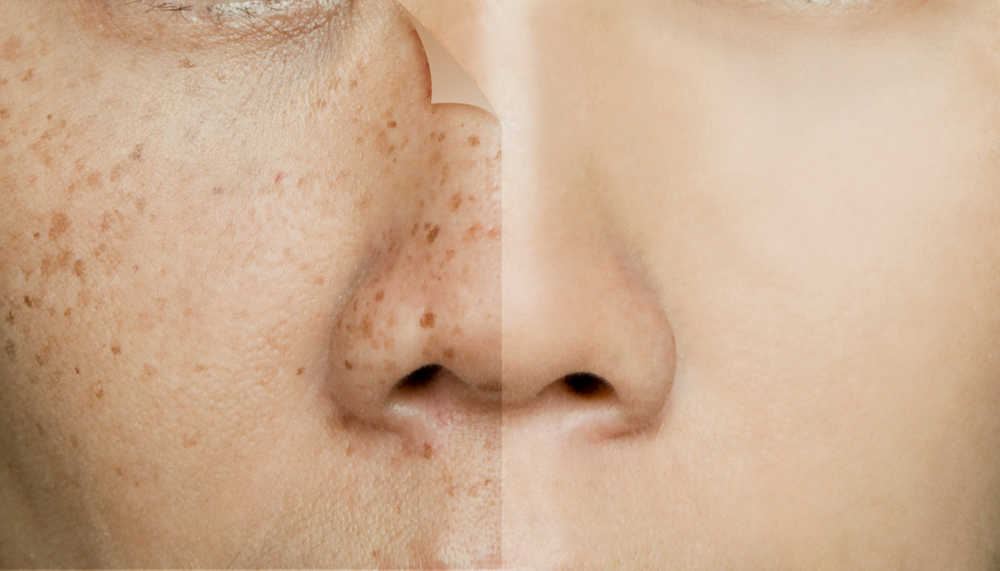 freckles removal singapore,