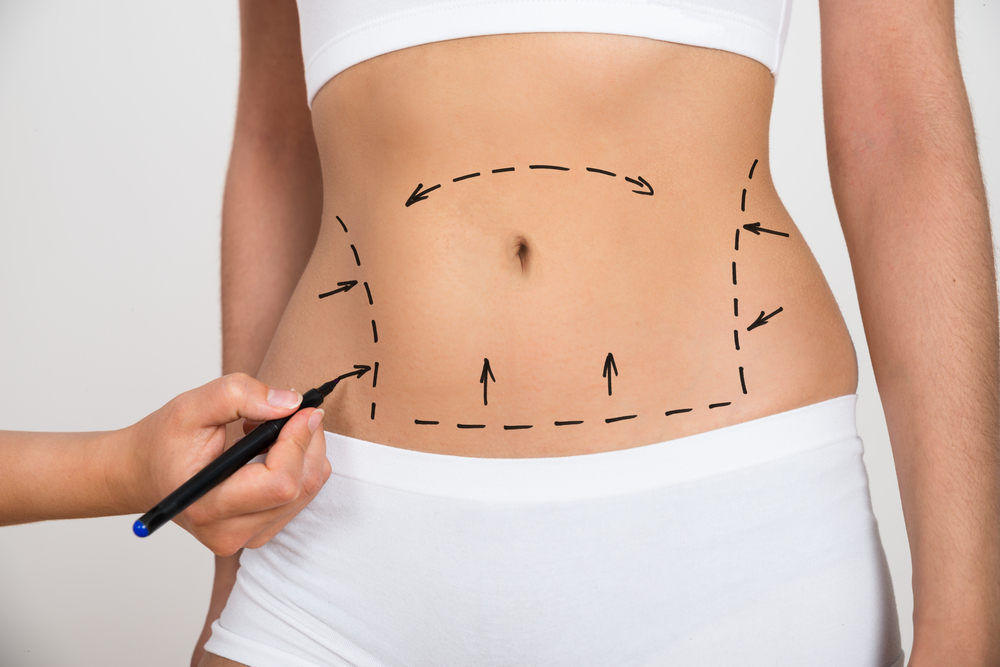 liposuction in singapore