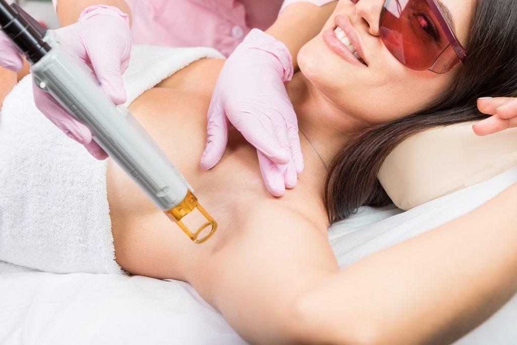 laser-hair-removal-underarm