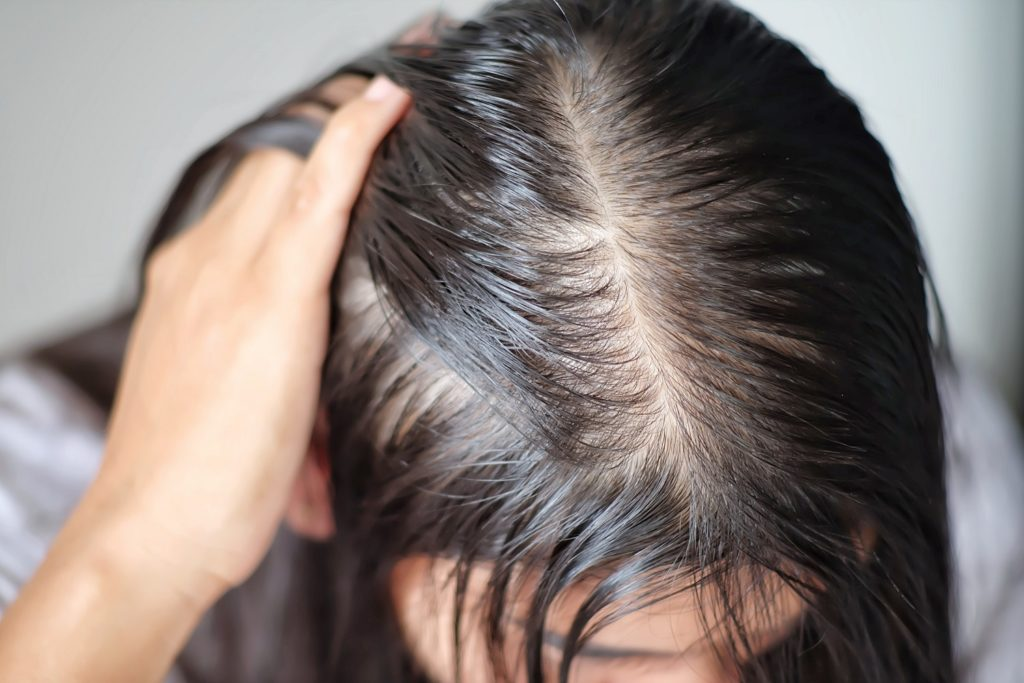 hair-transplants-singapore