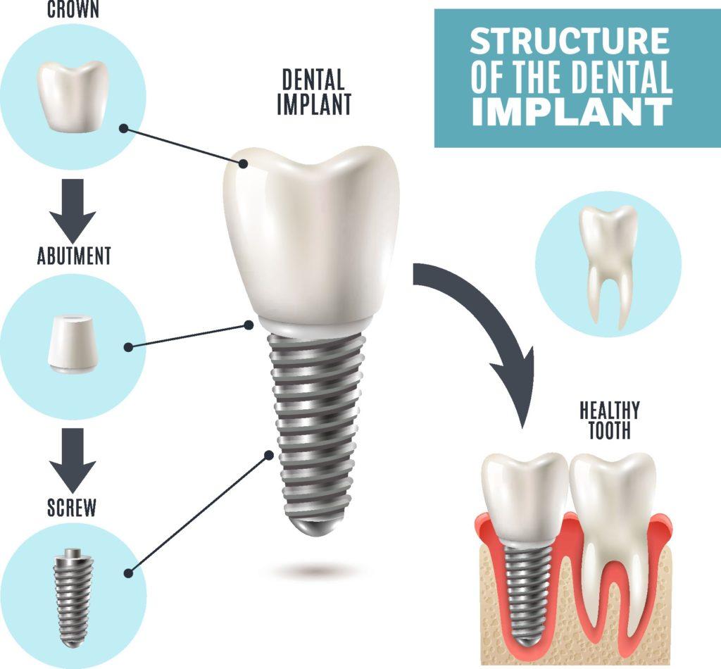 dental-implant-structure