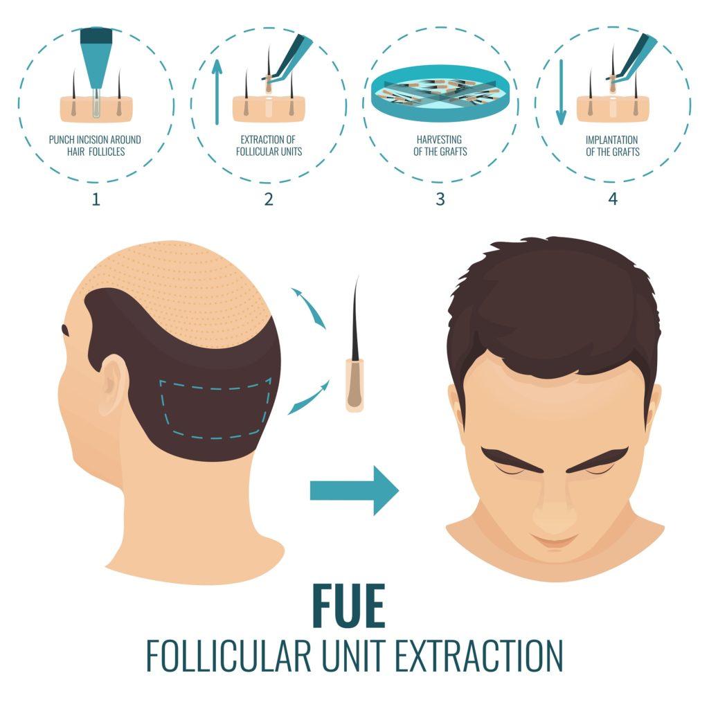 follicular-unit-extraction