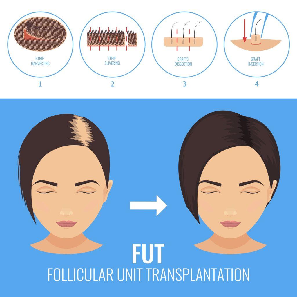 follicular-unit-transplantation