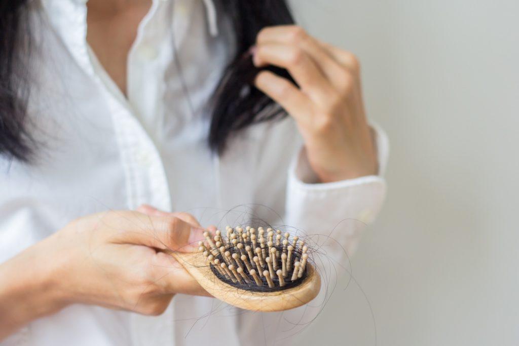 severe-hair-loss-singapore