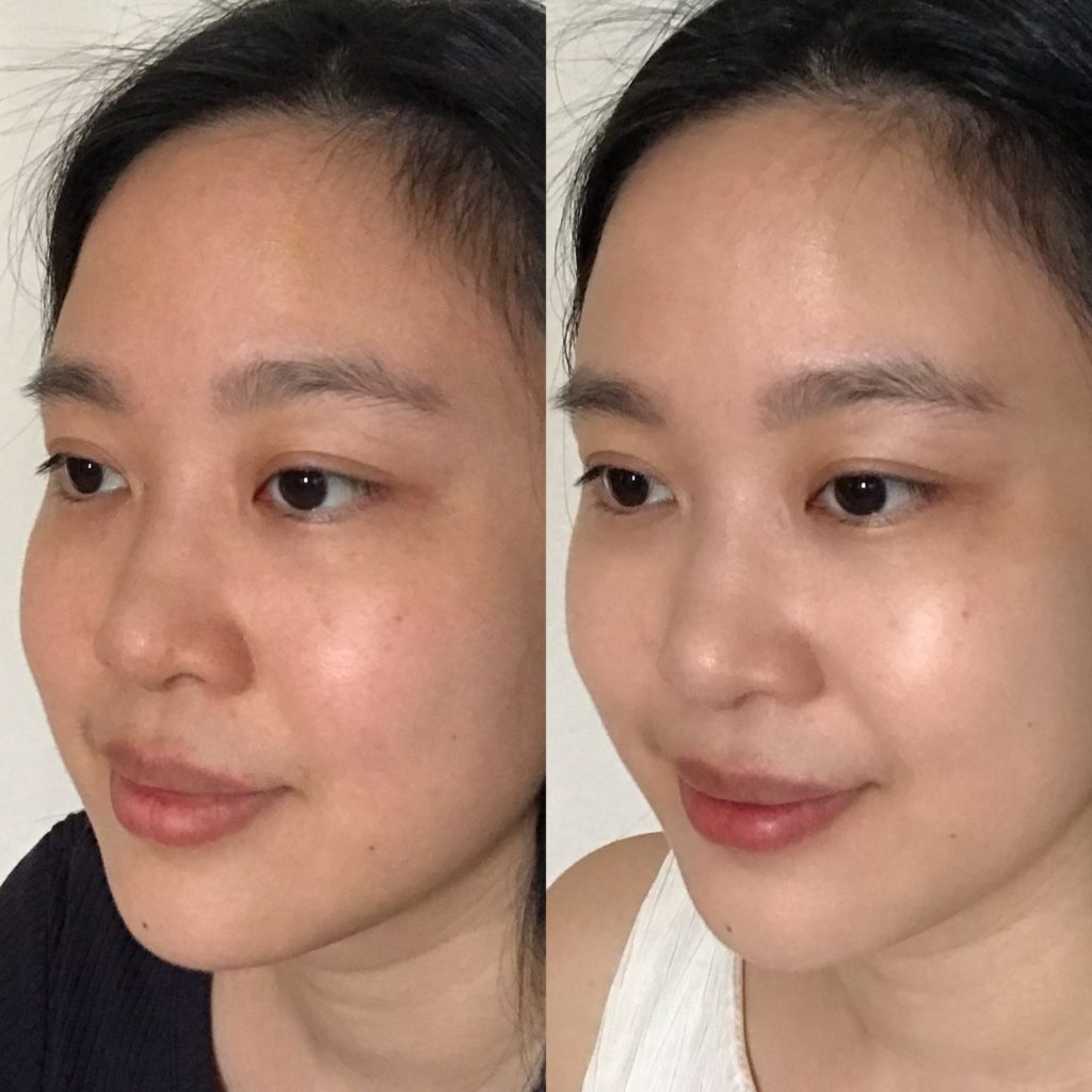 so-chio-led-mask-review