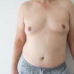 gynecomastia-vs-pseudogynecomastia